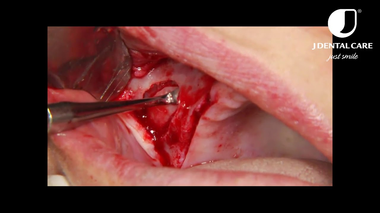 Lateral window sinus elevation technique - step by step video