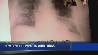 How COVID-19 Impacts Your Lungs