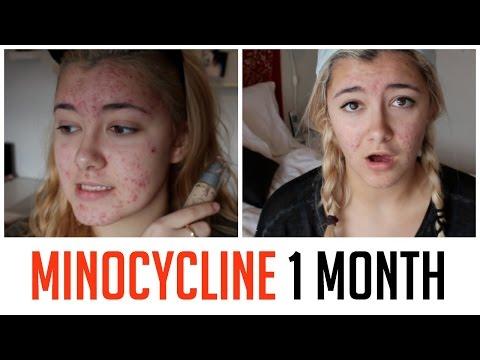hqdefault - Does Minocycline Cure Acne