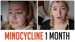 hqdefault - How Long To Take Minocin For Acne