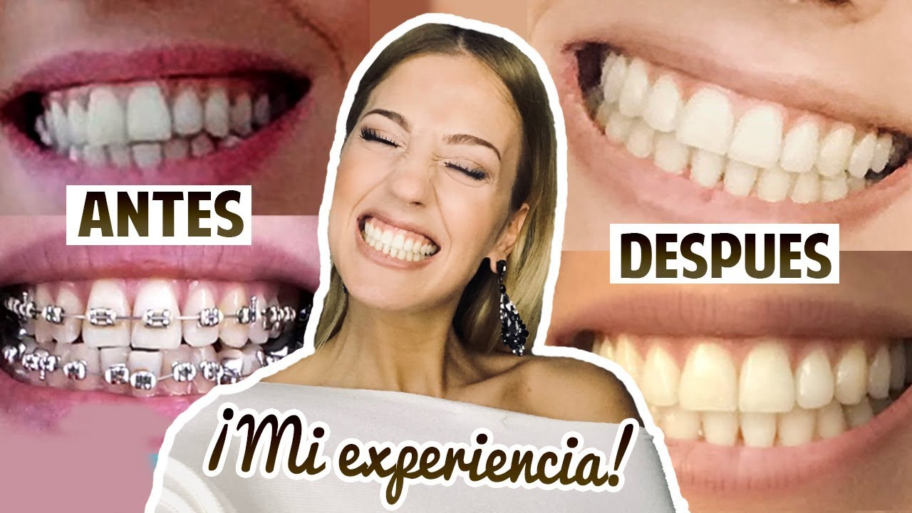 dentadura despues de los brackets