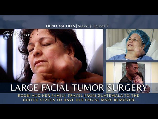 Surgery to Remove a Large Facial Tumor | Parotid Tumor