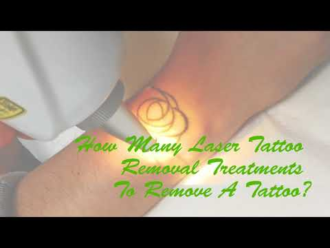 Tattoo Removal | Laser Express Beauty