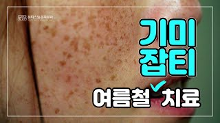 여름철 기미잡티 치료 [뷰티스맑은피부과] [KBC 닥터…