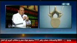 الناس الحلوة | علاج آلام الغضروف والعمود الفقرى مع د.محمد صديق هويدي