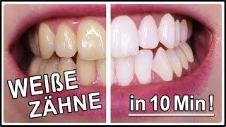 ▶︎ Weiße Zähne in 10 Minuten   Gelbe Zähne aufhellen mit diesen Hausmittel