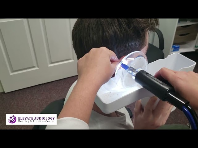EARWAX Removal- Painless Earwax Removal using the EARIGATOR