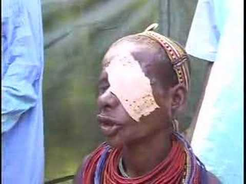 Trachoma -- A Devastating Blindness