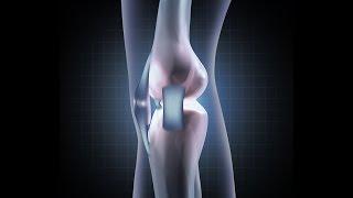 видео эндопротезирование коленного сустава
