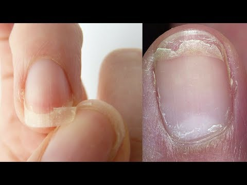 Top 3 Home Remedies To Get Rid Of Weak, Brittle, Cracked And Split Nails