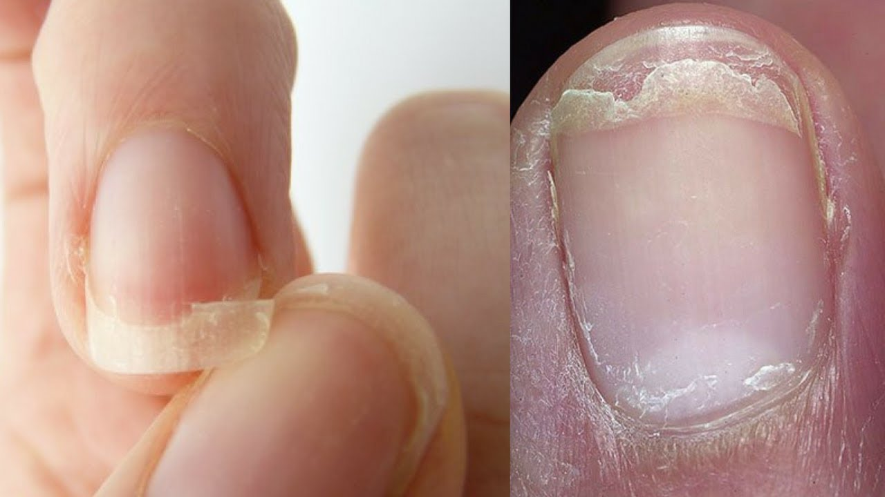 Top 3 Home Remes To Get Rid Of Weak Brittle Ed And Split Nails