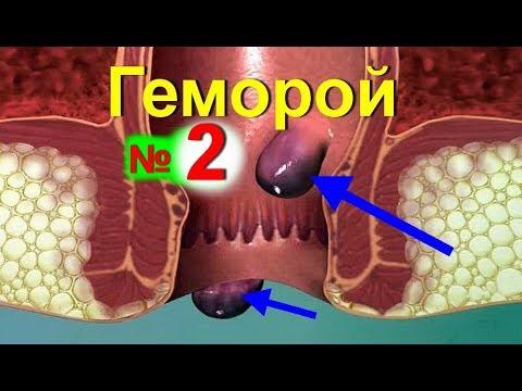 Лечебные мази и таблетки при варикозном расширении вен на
