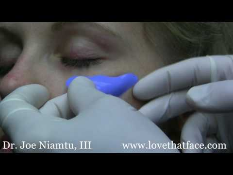 Choosing The Right Cheek Implant For Your Face