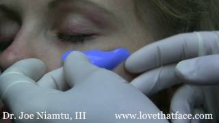 Choosing Right Cheek Implant Your Face