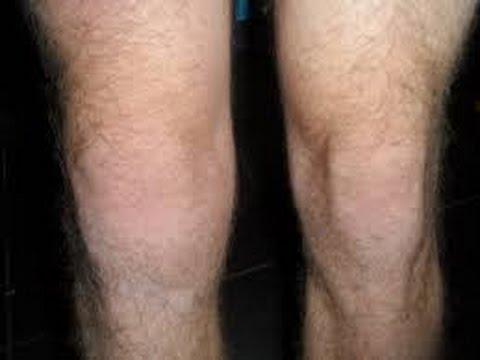 Resultado de imagem para artrose joelho inchaço