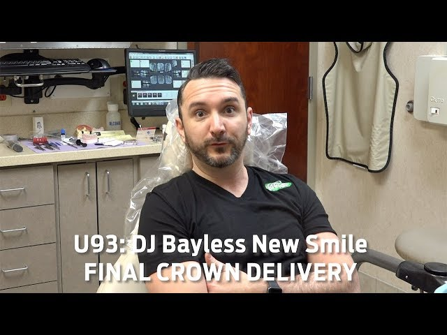 Bayless New Smile-Final Crowns