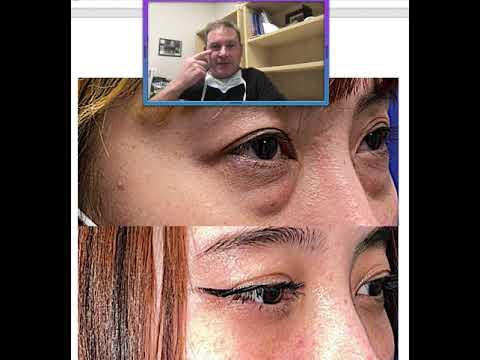 Lower Eyelid Fat Blepharoplasty by Dr. John Burroughs from Springs Aesthetics in Colorado Springs