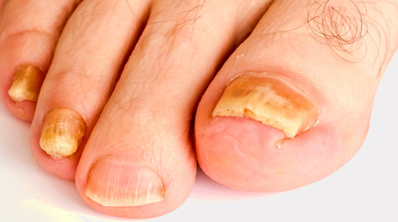 My Personal MD: Fight Nail Fungus   Podiatry - YouTube
