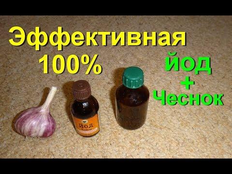 народные рецепты от шейного остеохондроза растирки