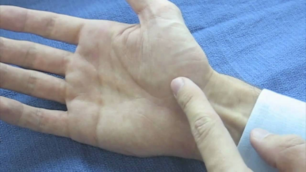 Hand Surface Anatomy Palm Side Youtube