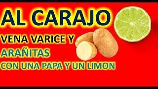 Una Papa y Un Limón / Sirven Para Curar las Varices SIN VISITAR AL MEDICO...