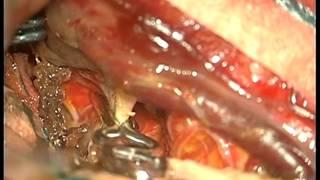 Kanamış sağ MCA büyük anevrizma ve intraserebral hematom