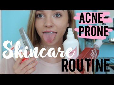 ACNE Teenage Skincare Routine Winter ft. Exposed Skincare  Lindsay