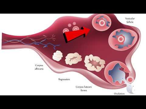 Киста желтого тела яичника: причины, симптомы, лечение
