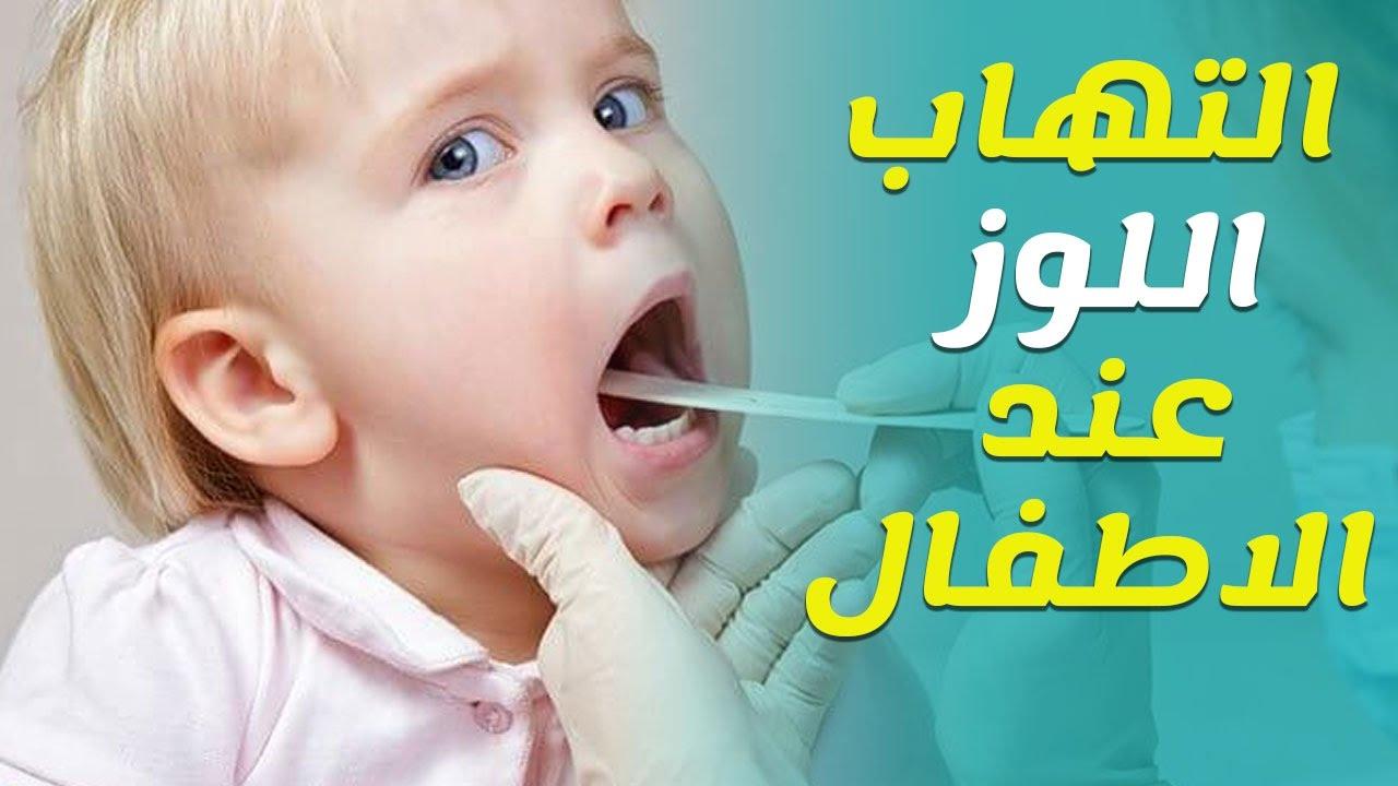 علاج التهاب اللوزتين عند الاطفال في المنزل Youtube