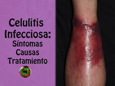 que es celulitis infecciosa en niños