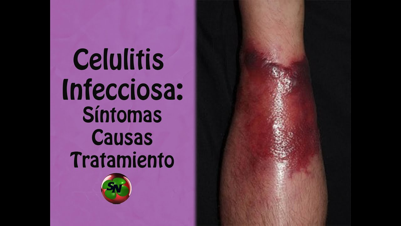 celulitis en pies de diabetes