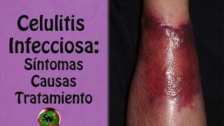 diagnostico diferencial de celulitis abscedada