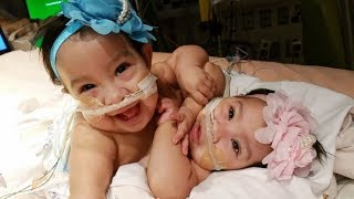 U.S Conjoined baby twin girls survive complex 26 hour operation to separate them was World First