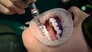 видео Лазерное отбеливание зубов