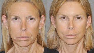 AuraLyft Playboy Model full facial rejuvenation- E News Awake Painless Facelift Browlift