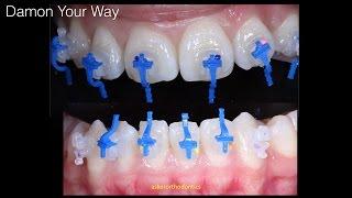 Orthodontic implant combination case (Damon braces)