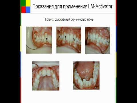 Клиническое применение LM-Activator