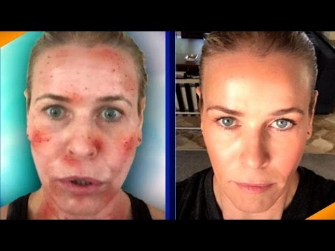 Beauty Confidential: Star Laser Secrets