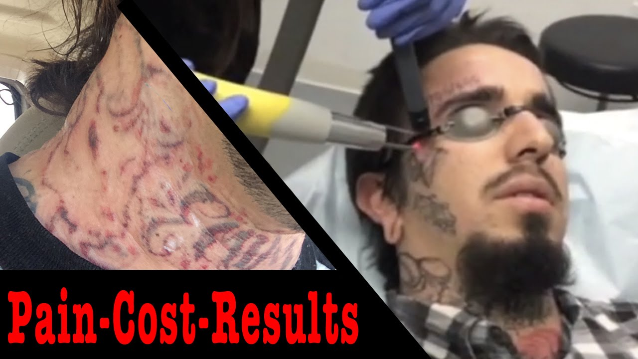 The Truth About Laser Tattoo Removal Pain Cost And Results