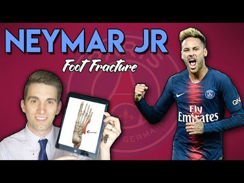 Neymar Jr Metatarsal Foot Injury | Doctor Explains Foot Fractures