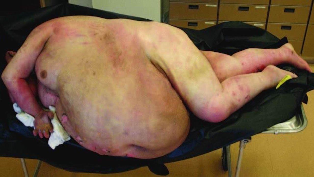 schlimme verletzungen