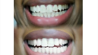 How I Whiten My Teeth   Bentonite Clay + White with Style