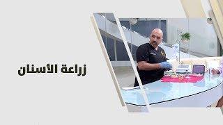 د. خالد عبيدات - زراعة الأسنان
