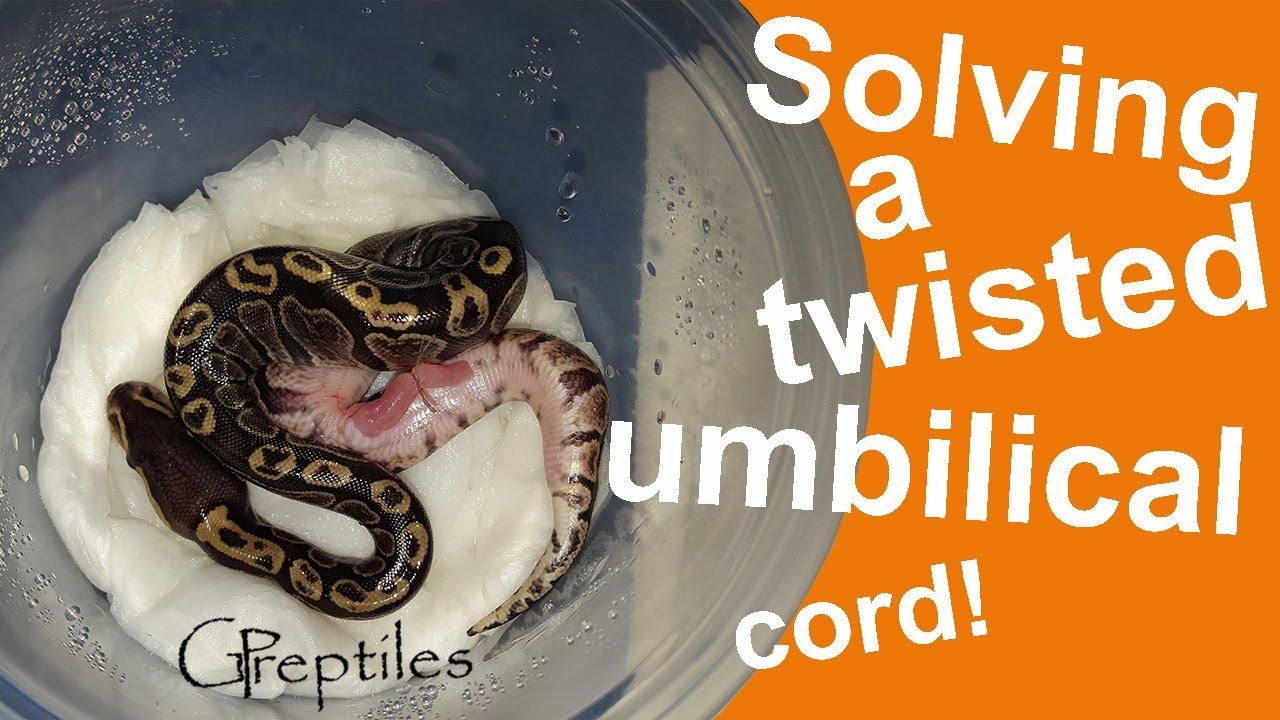 Cutting a twisted umbilical cord - BP clutch #3!