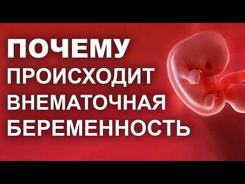 Причины и последствия внематочной беременности.