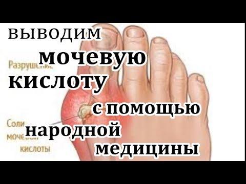МОЧЕВАЯ КИСЛОТА И ЕЕ ВЫВЕДЕНИЕ ИЗ ОРГАНИЗМА С ПОМОЩЬЮ НАРОДНОЙ МЕДИЦИНЫ!!!!!!!!!