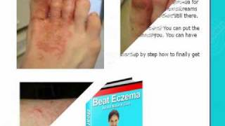 Eczema -eczema eyelids treatment - See now! Thumbnail