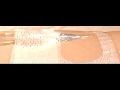 Peripheral IV Dressing Change: Tegaderm™ I.V. Advanced