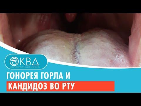 Гонорея горла и кандидоз во рту. Клинический случай №122