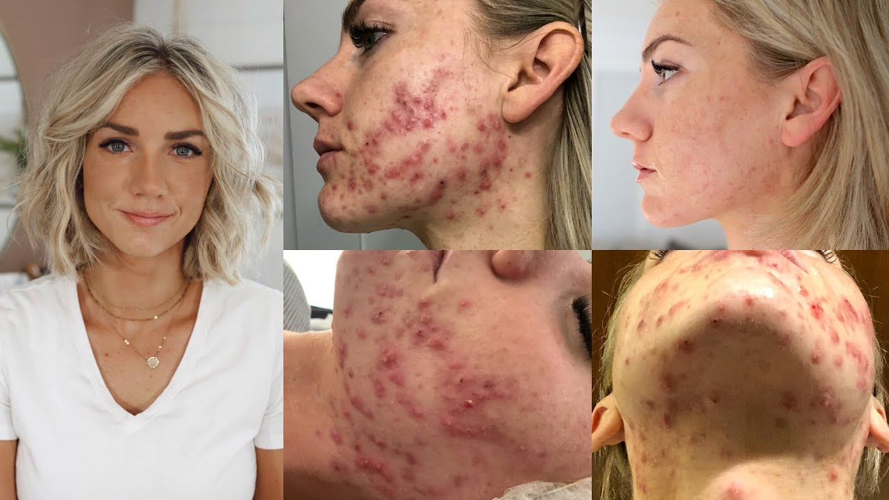 How I Cured My Adult Hormonal Cystic Acne Naturally No Accutane Youtube